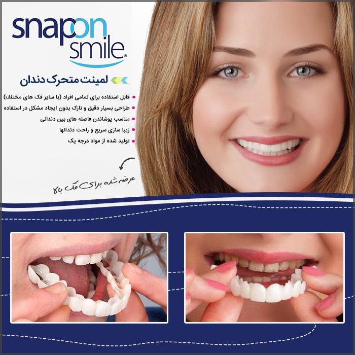 لمینت متحرک دندان - Snap On Smile